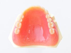 保険適応の総入れ歯