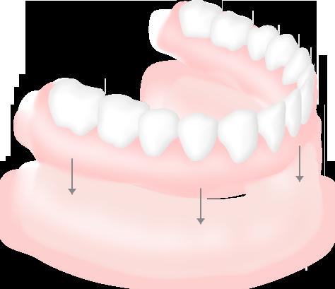 総入れ歯の仕組み