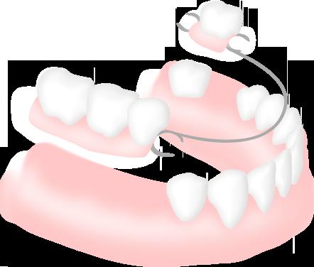 部分入れ歯の仕組み