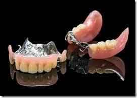 金属床義歯の仕組み