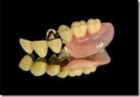 アタッチメント義歯の仕組み