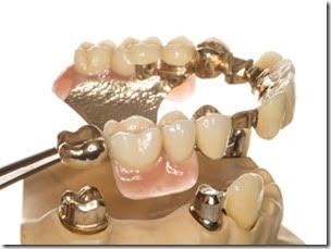 コヌース義歯の仕組み