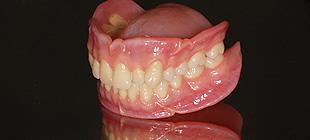 イボカップ義歯の仕組み