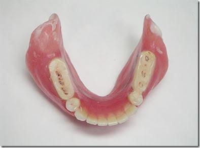 治療用義歯の仕組み