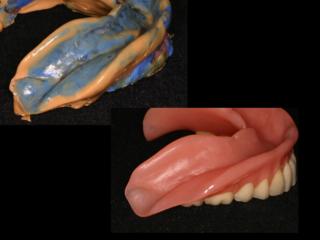 型取り後の様子と出来上がった入れ歯